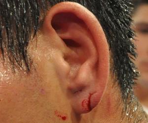 Боксер, в стиле Майка Тайсона, укусил за ухо своего соперника (1)