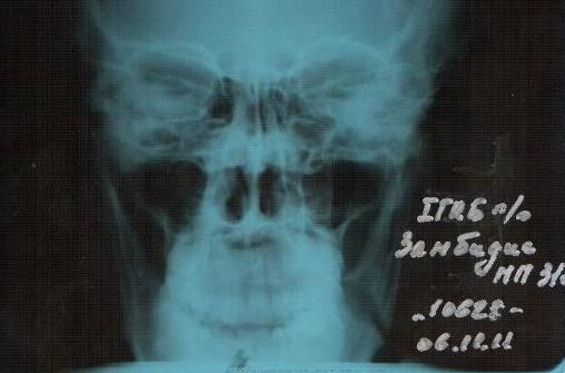 Сломанная челюсть Майка Замбидиса