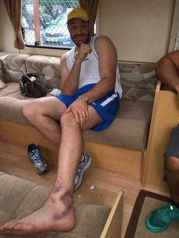 Тайсон Фьюри травмирован. Бой с Владимиром Кличко перенесен (1)